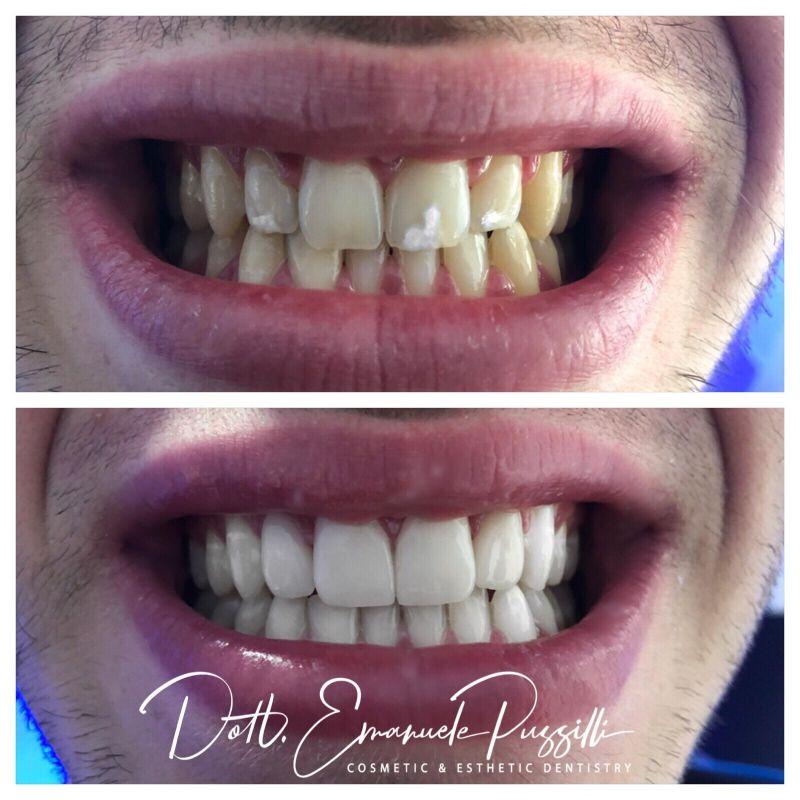 Faccette dentali - Prima e dopo