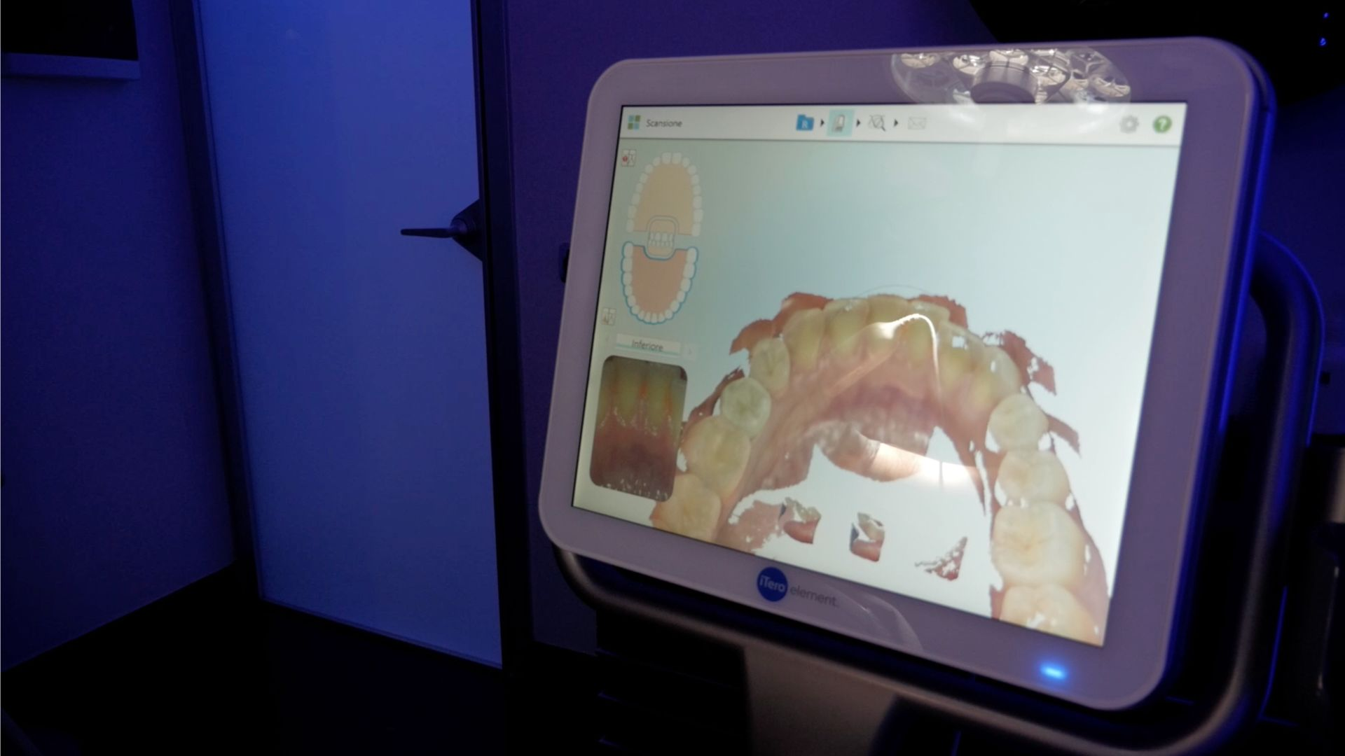 Scanner per impronta dentale