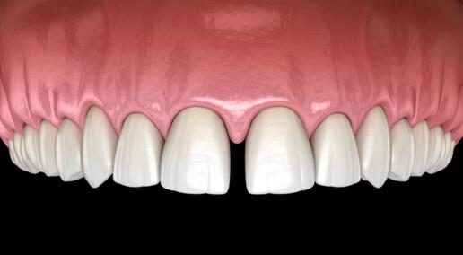 spazio tra i denti incisivi