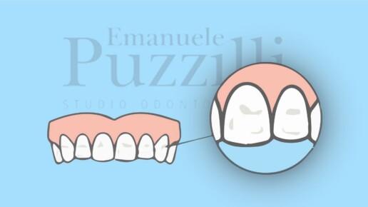 Macchie bianche denti