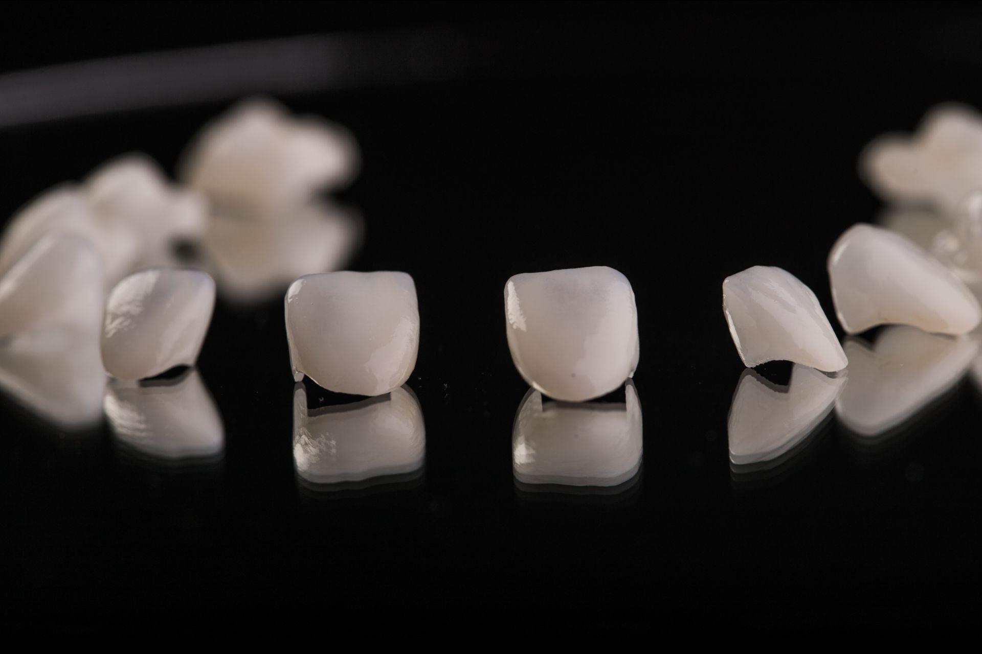 Macchie ai denti