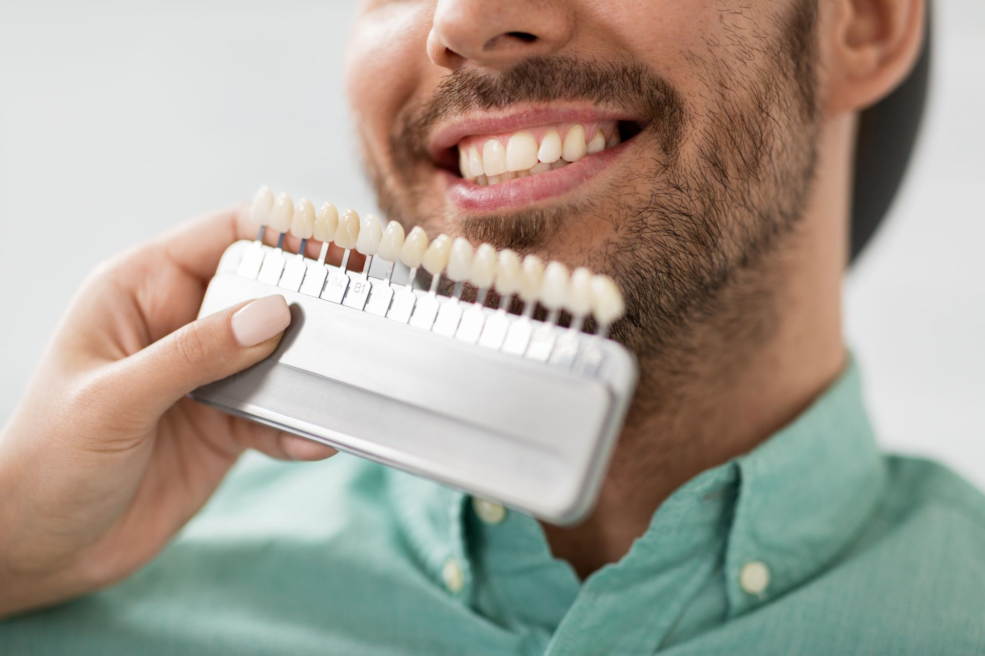 Colore denti