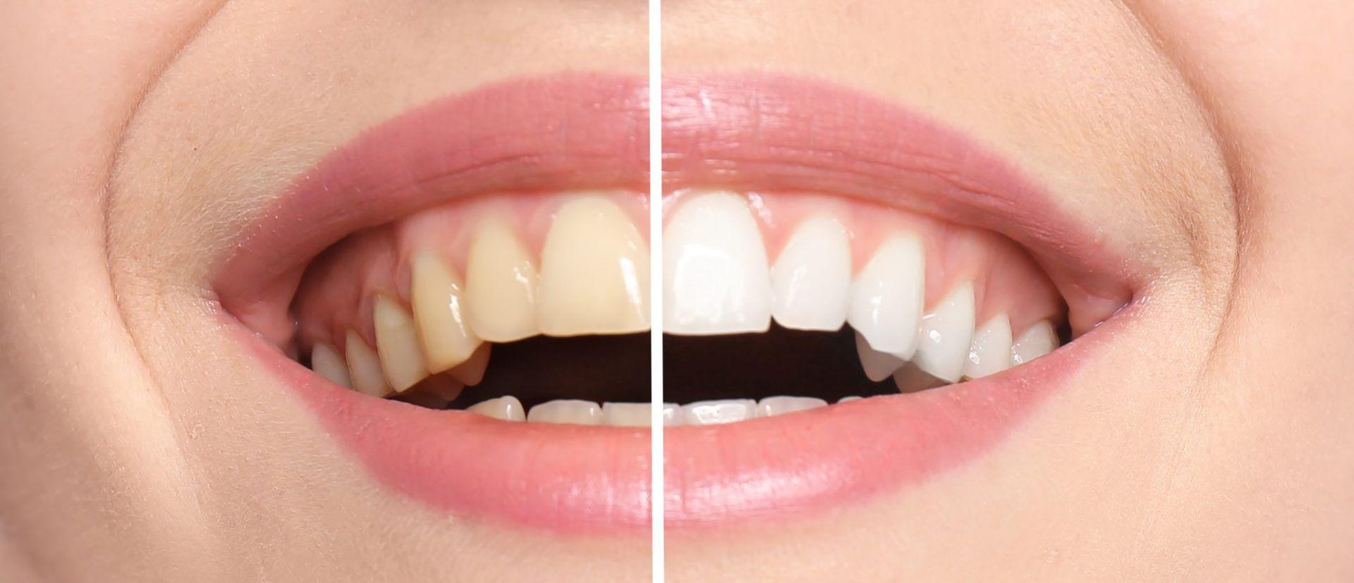 Denti bianchi e denti gialli