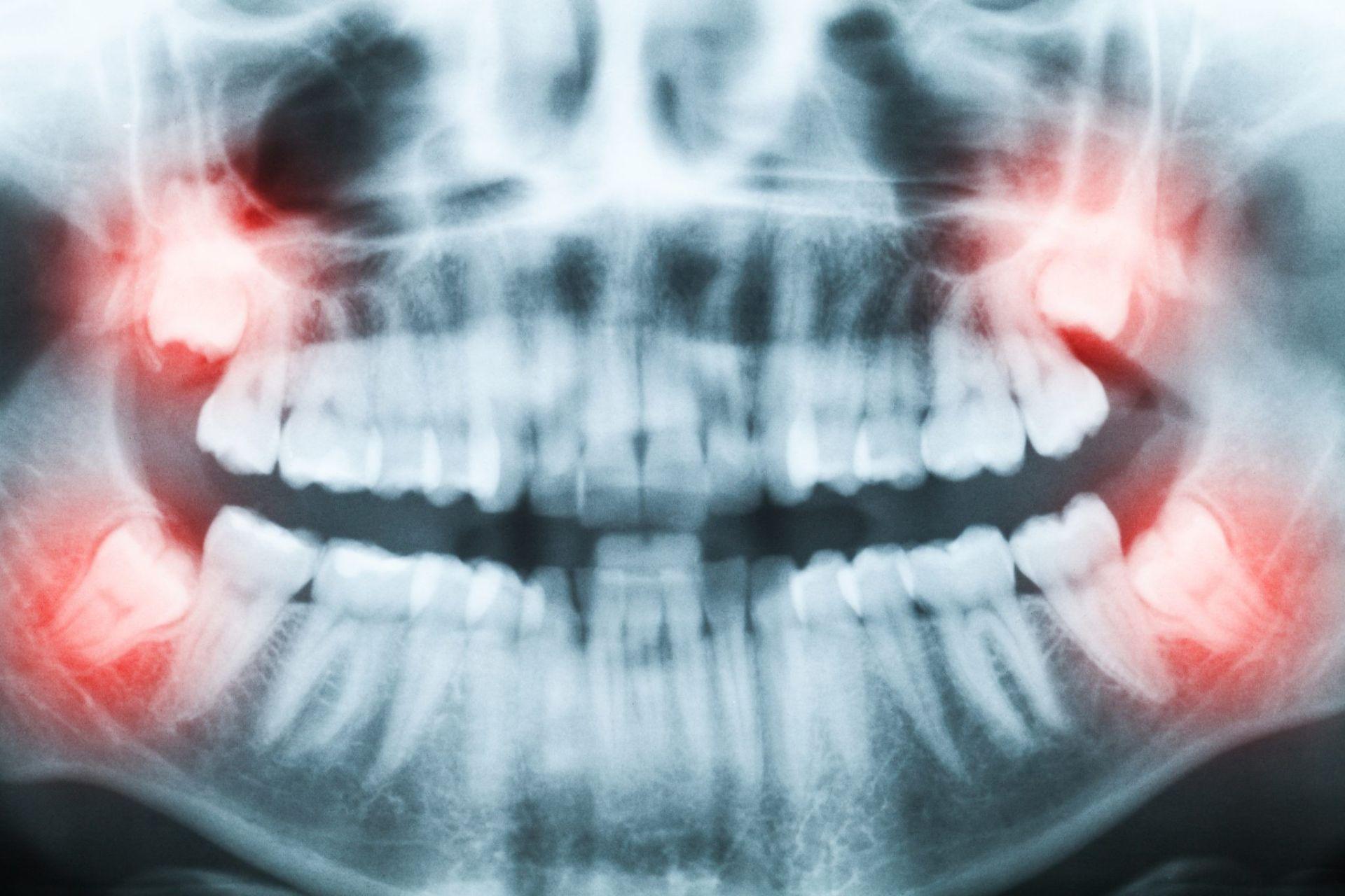 Radiografia denti