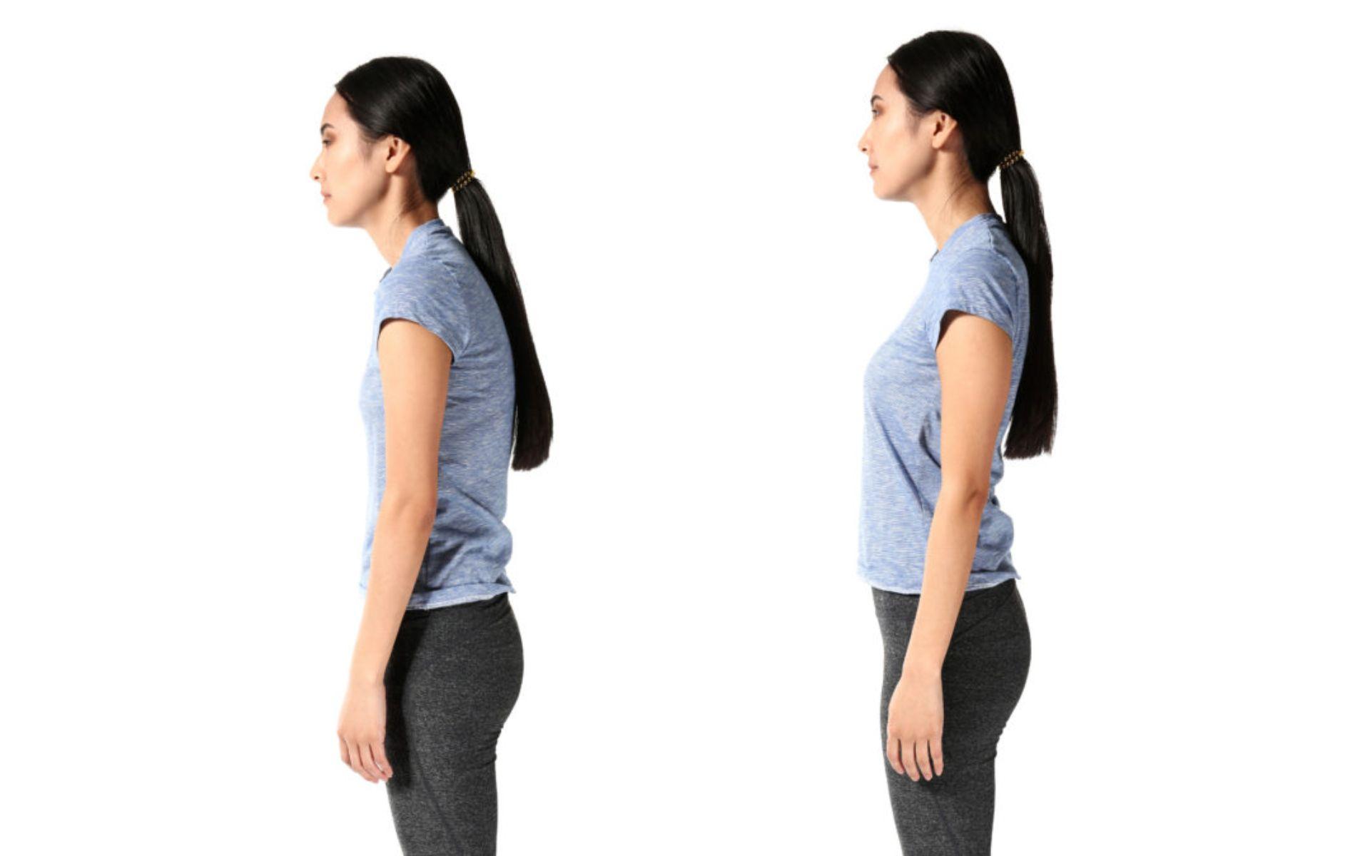 donna con postura scorretta