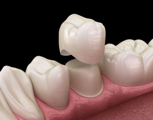 Capsula sul dente