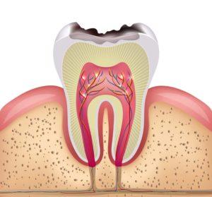 Denti cariati e otturazione
