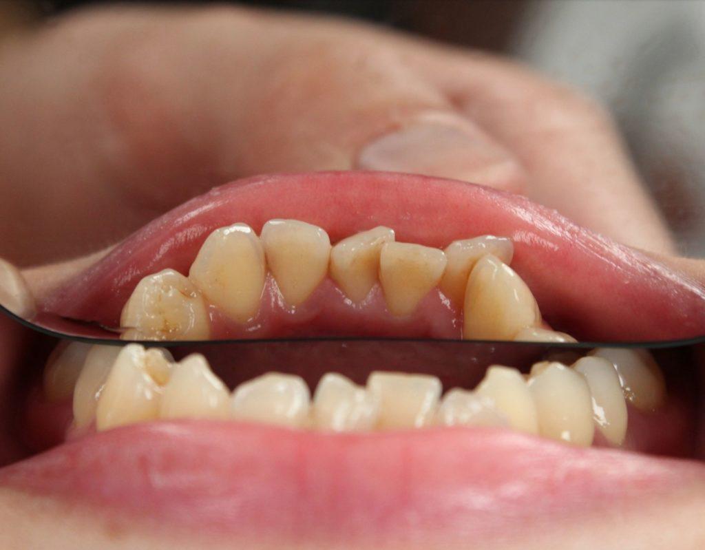 denti storti per affollamento dentale