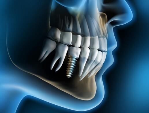 impianto dentale a carico immediato